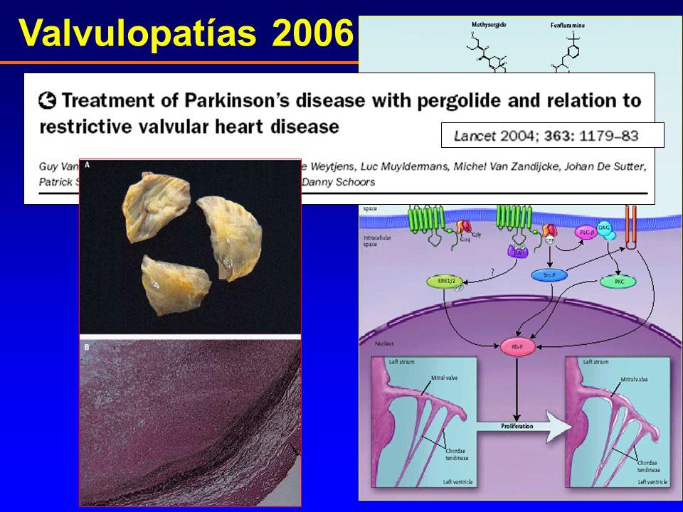 Valvulopatías 2006 V. inducidas por fármacos Van Camp, Lancet 2004; 363:1179