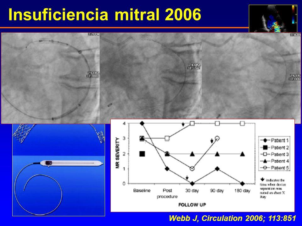 Insuficiencia mitral 2006 Webb J, Circulation 2006; 113:851