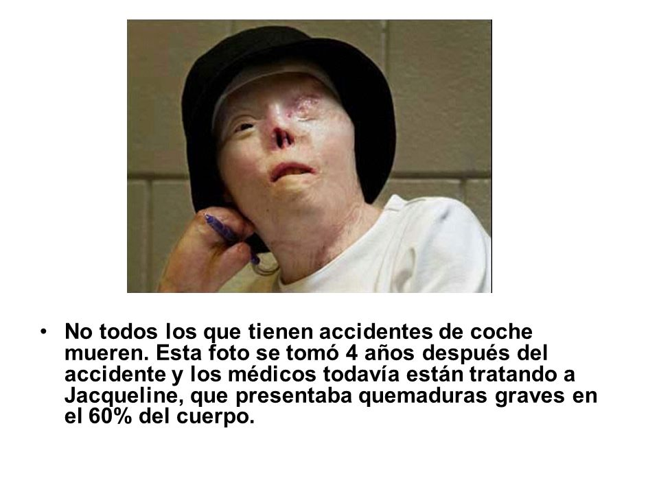 No todos los que tienen accidentes de coche mueren. Esta foto se tomó 4 años después del accidente y los médicos todavía están tratando a Jacqueline,