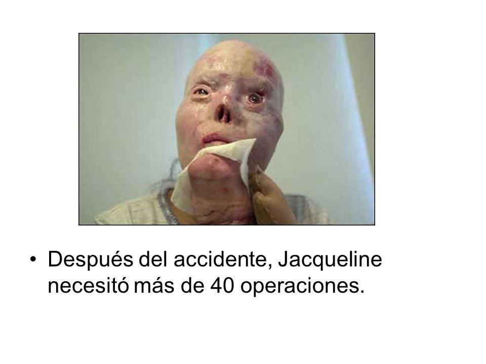 Después del accidente, Jacqueline necesitó más de 40 operaciones.