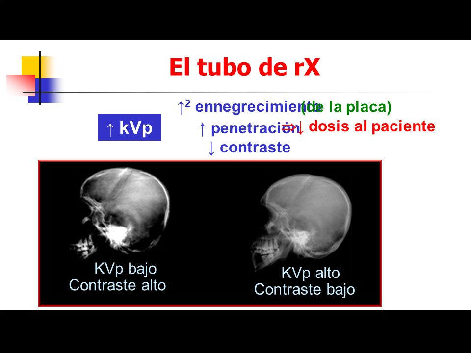 Medidas para disminuir la dosis al paciente en las exploraciones Radiación primaria Paciente Radiación dispersa Parrilla Película