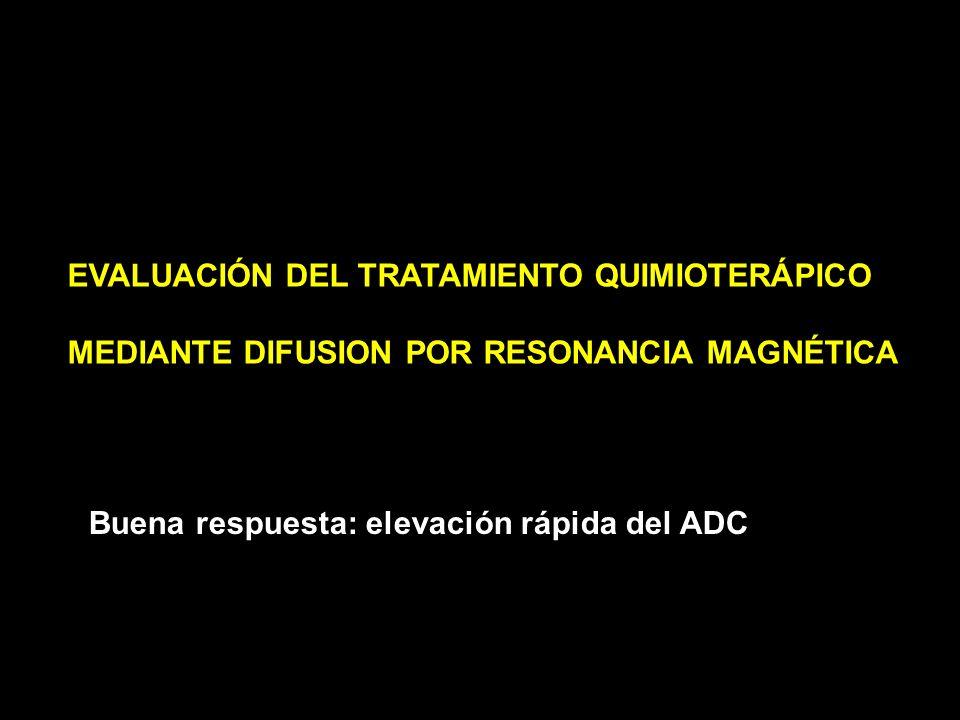 38 años Tumor palpable BAG: Ca medular Respuesta histológica completa tras tratamiento Quimioterápico