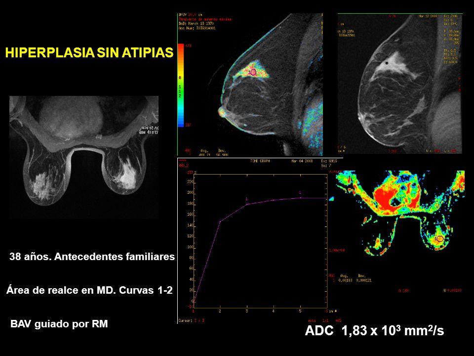 ABSCESO: ADC muy bajo SE T1FSE T2 22 años Masa retroareolar inflamatoria secundaria a piercing en pezón