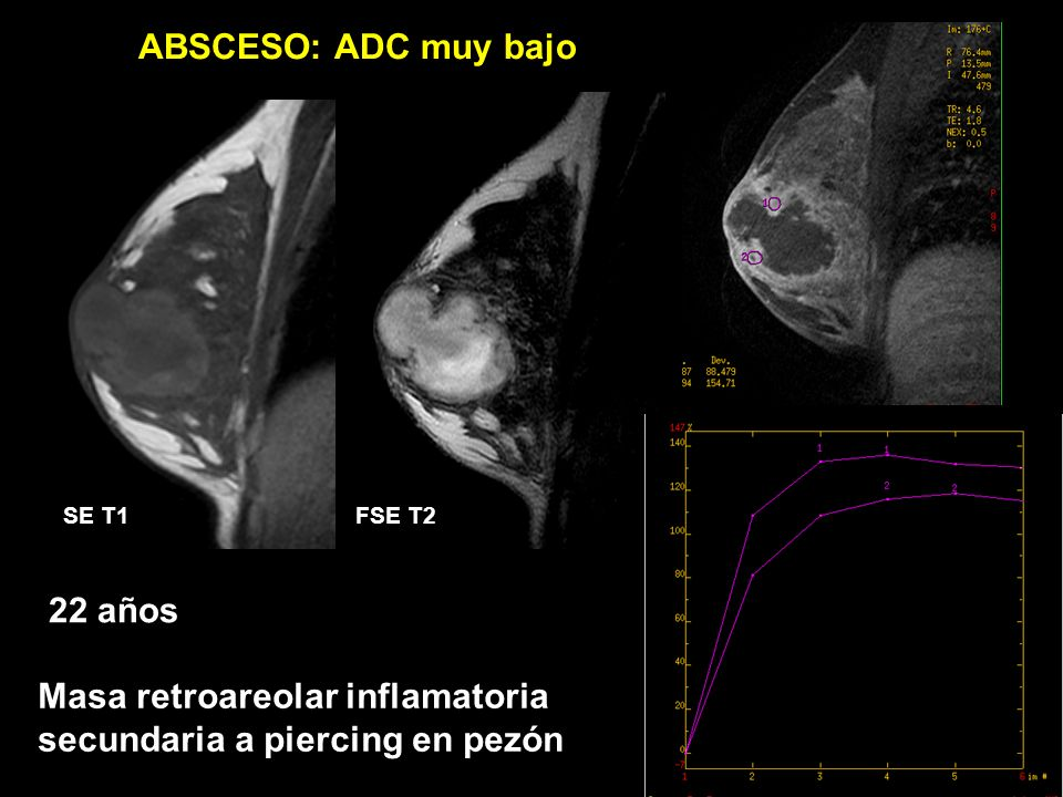 ADC 0,40 x 10 3 mm 2 /s ABSCESO