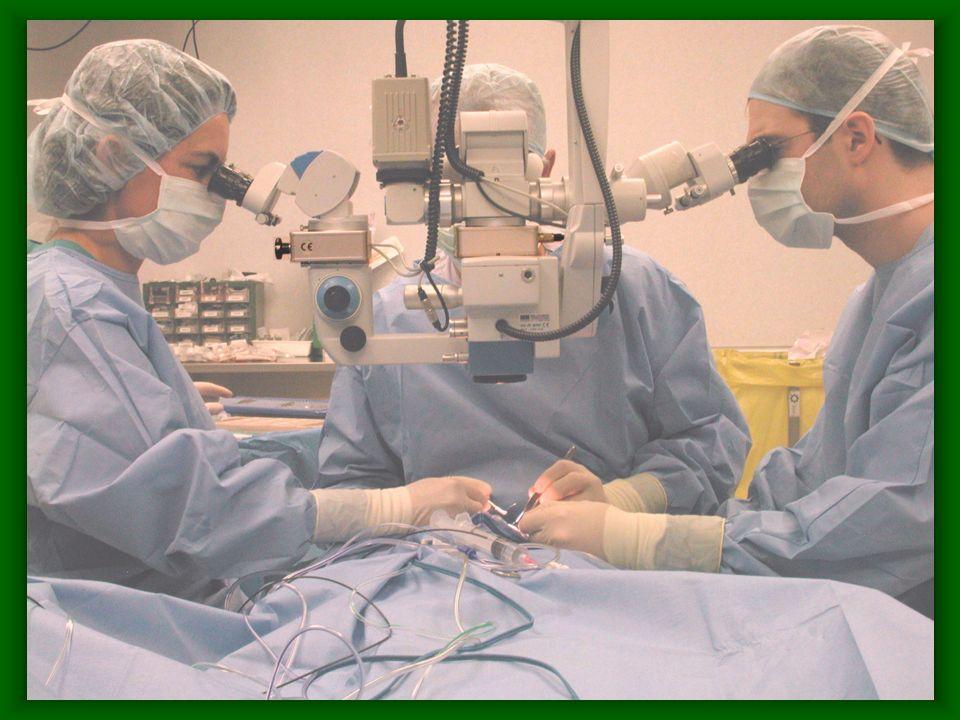 Microscopio Proteger la mácula de la fototoxicidad producida por la iluminación coaxial.