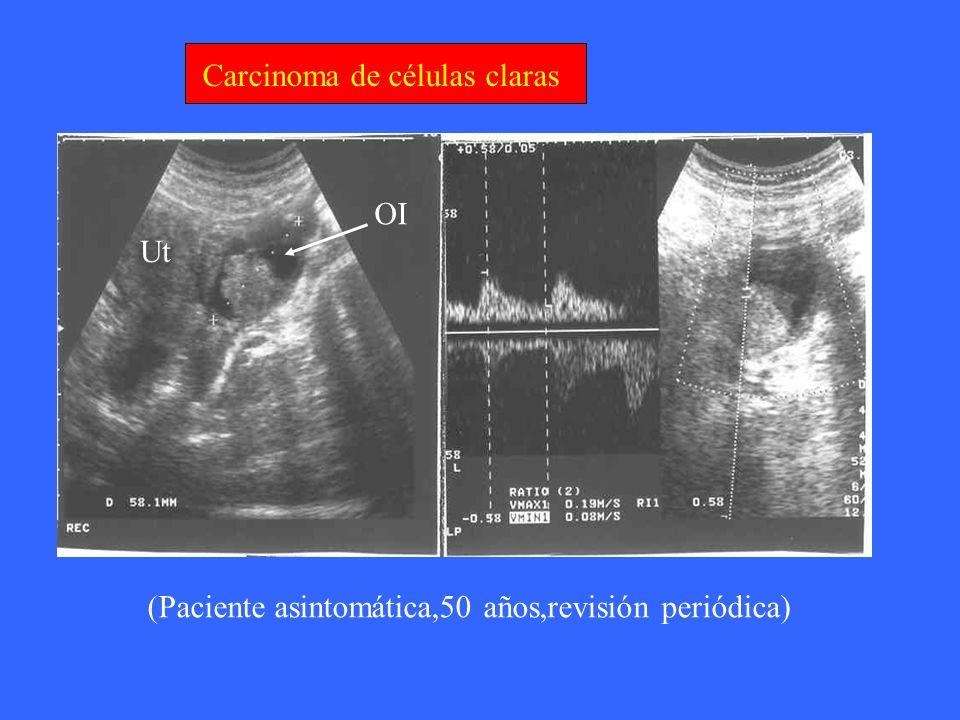 Carcinoma de células claras Ut OI (Paciente asintomática,50 años,revisión periódica)
