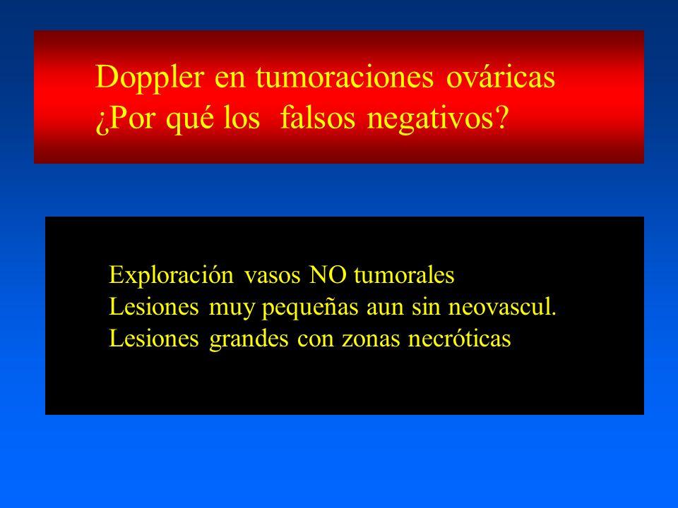 Doppler en tumoraciones ováricas ¿Por qué los falsos negativos? Exploración vasos NO tumorales Lesiones muy pequeñas aun sin neovascul. Lesiones grand