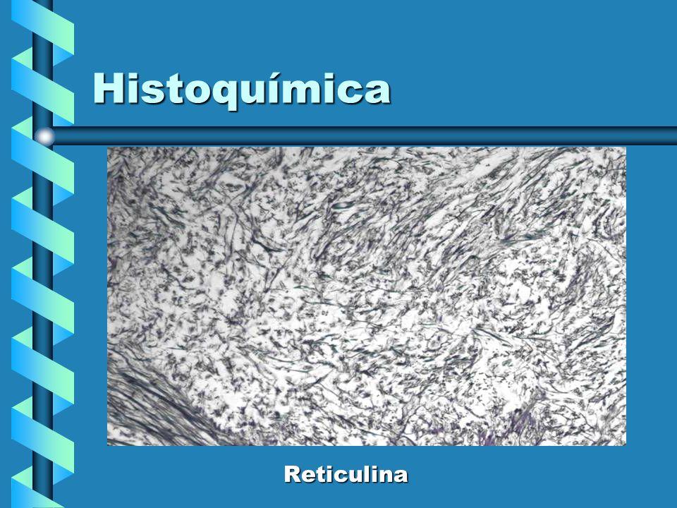 Histoquímica Reticulina