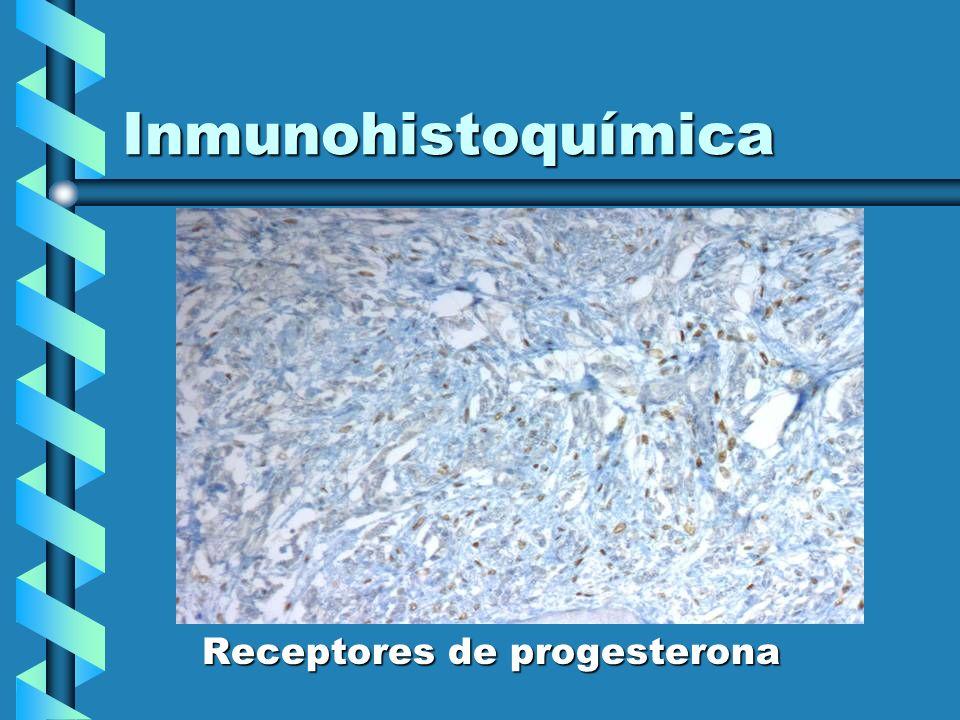 Inmunohistoquímica Receptores de progesterona