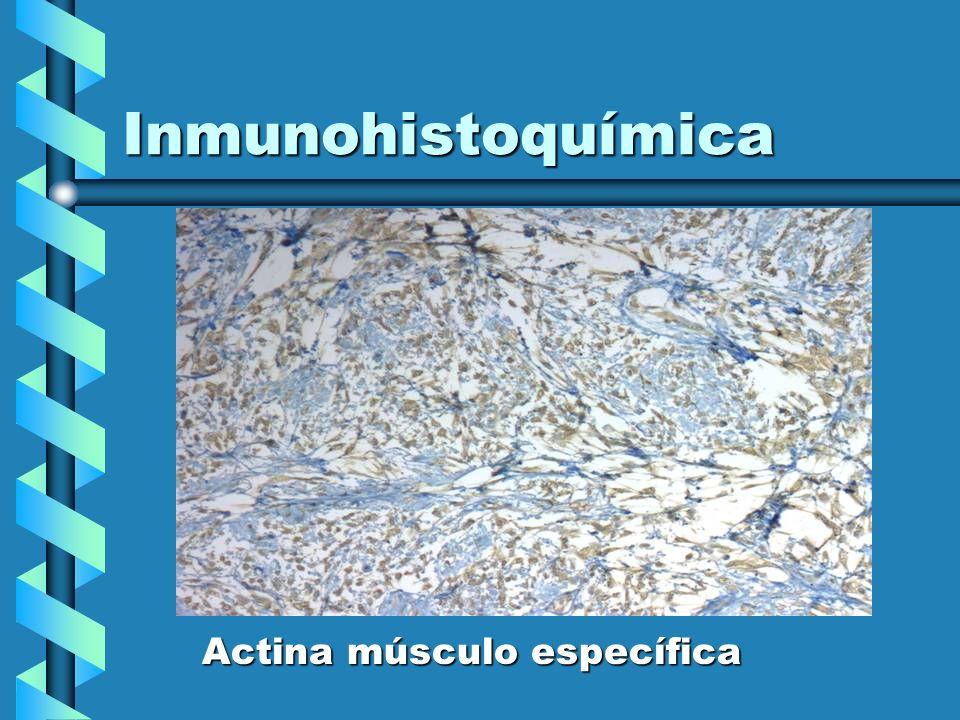 Inmunohistoquímica Actina músculo específica