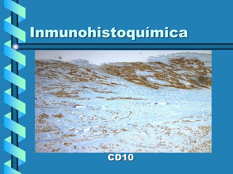 Inmunohistoquímica CD10