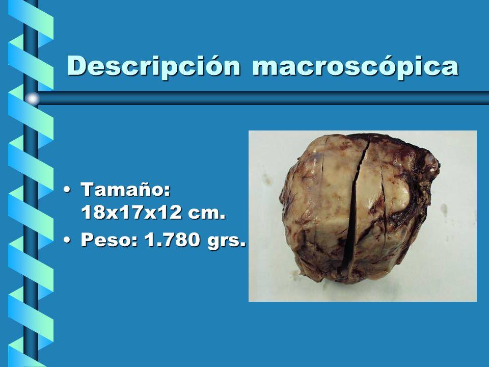Descripción macroscópica Tamaño: 18x17x12 cm.Tamaño: 18x17x12 cm. Peso: 1.780 grs.Peso: 1.780 grs.
