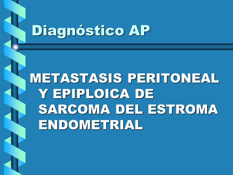 Diagnóstico AP METASTASIS PERITONEAL Y EPIPLOICA DE SARCOMA DEL ESTROMA ENDOMETRIAL