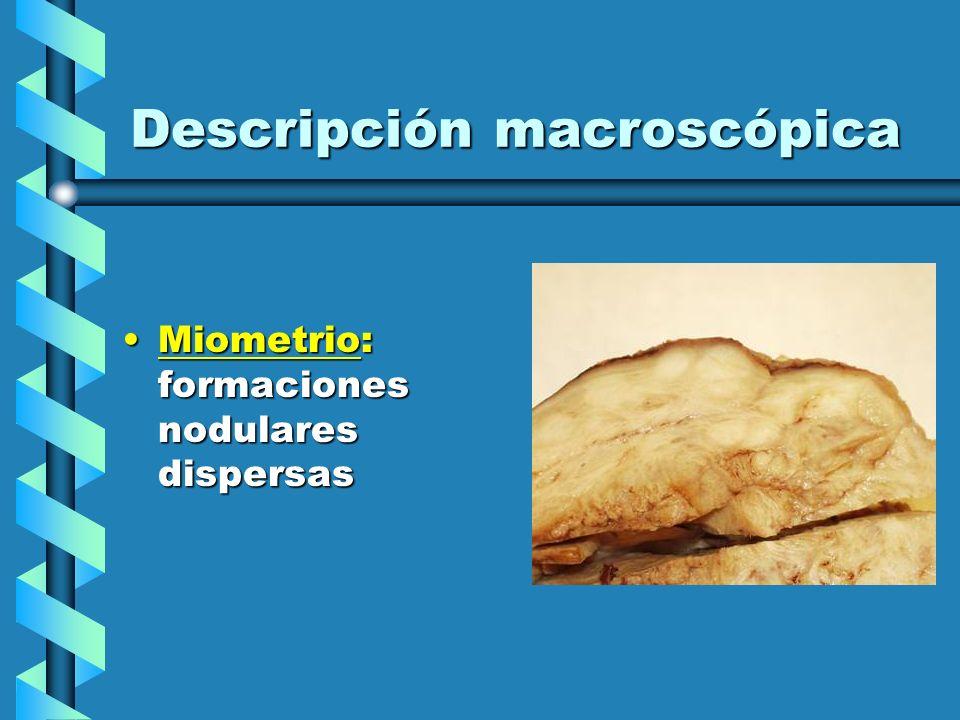 Descripción macroscópica Miometrio: formaciones nodulares dispersasMiometrio: formaciones nodulares dispersas