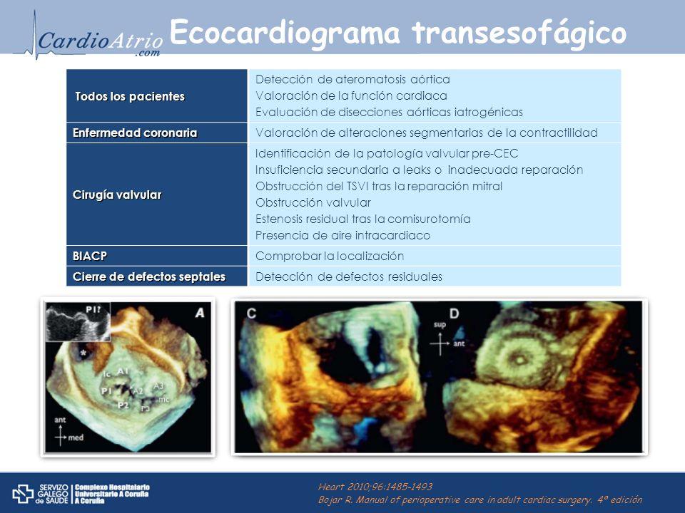 Ecocardiograma transesofágico Todos los pacientes Todos los pacientes Detección de ateromatosis aórtica Valoración de la función cardiaca Evaluación d