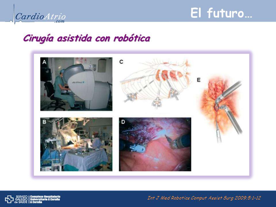 El futuro… Cirugía asistida con robótica Int J Med Robotics Comput Assist Surg 2009;5:1-12