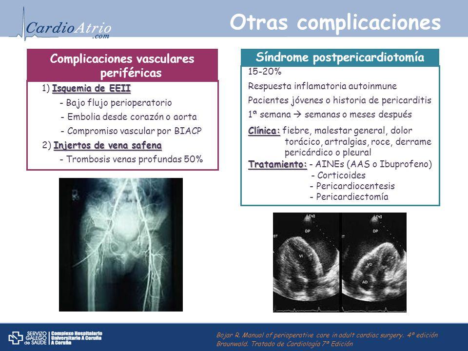 Otras complicaciones Complicaciones vasculares periféricas Isquemia de EEII 1) Isquemia de EEII - Bajo flujo perioperatorio - Embolia desde corazón o