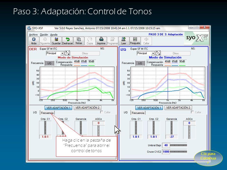 Utilice el control AGCo Para limitar la salida máxima: sonidos muy fuertes (Línea Verde) Paso 3: Adaptación: Control AGCo CUANDO USAR Control de AGCo