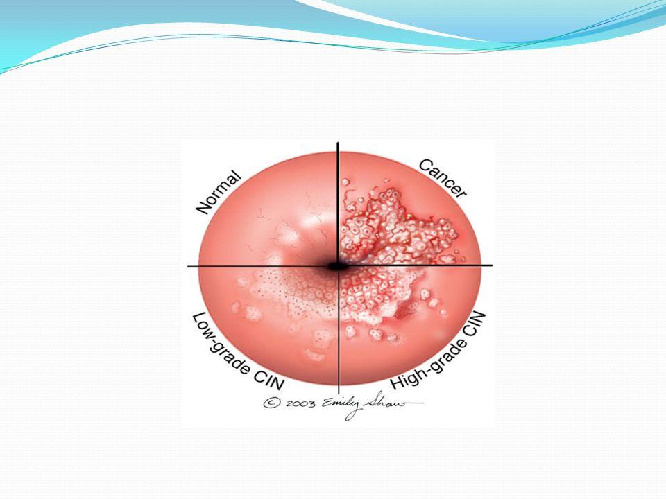 Técnicas diagnósticas Citología Colposcopía Histología Estudios virológicos