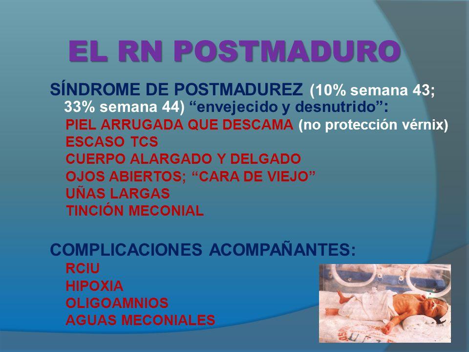 EL RN POSTMADURO SÍNDROME DE POSTMADUREZ (10% semana 43; 33% semana 44) envejecido y desnutrido : PIEL ARRUGADA QUE DESCAMA (no protección vérnix) ESCASO TCS CUERPO ALARGADO Y DELGADO OJOS ABIERTOS; CARA DE VIEJO UÑAS LARGAS TINCIÓN MECONIAL COMPLICACIONES ACOMPAÑANTES: RCIU HIPOXIA OLIGOAMNIOS AGUAS MECONIALES