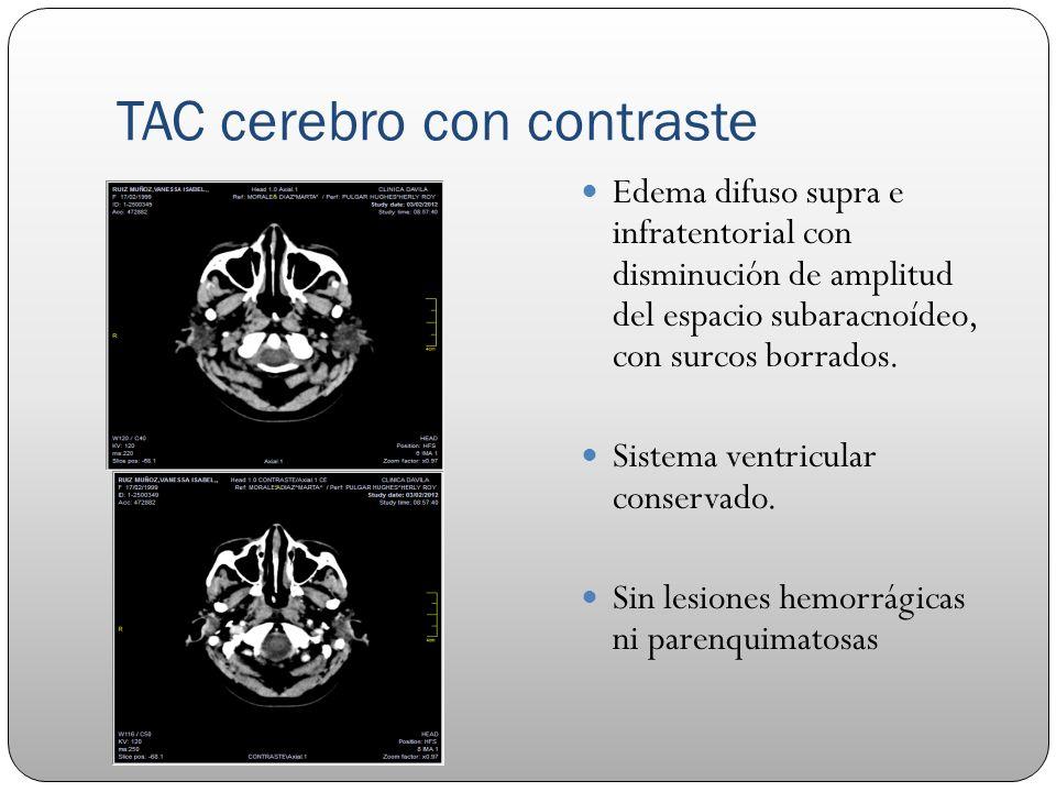 TAC cerebro con contraste Edema difuso supra e infratentorial con disminución de amplitud del espacio subaracnoídeo, con surcos borrados. Sistema vent