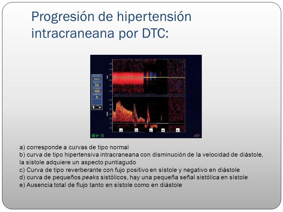 Progresión de hipertensión intracraneana por DTC: a) corresponde a curvas de tipo normal b) curva de tipo hipertensiva intracraneana con disminución d