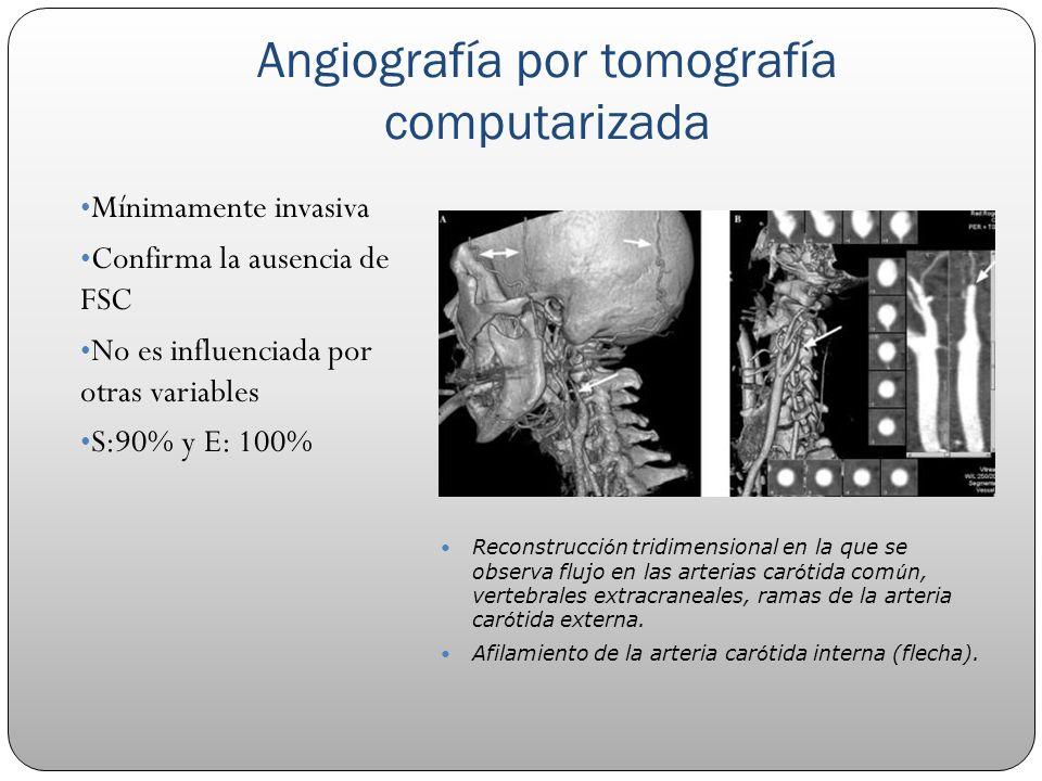 Angiografía por tomografía computarizada Mínimamente invasiva Confirma la ausencia de FSC No es influenciada por otras variables S:90% y E: 100% Recon