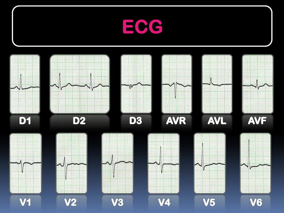 ECG ECG