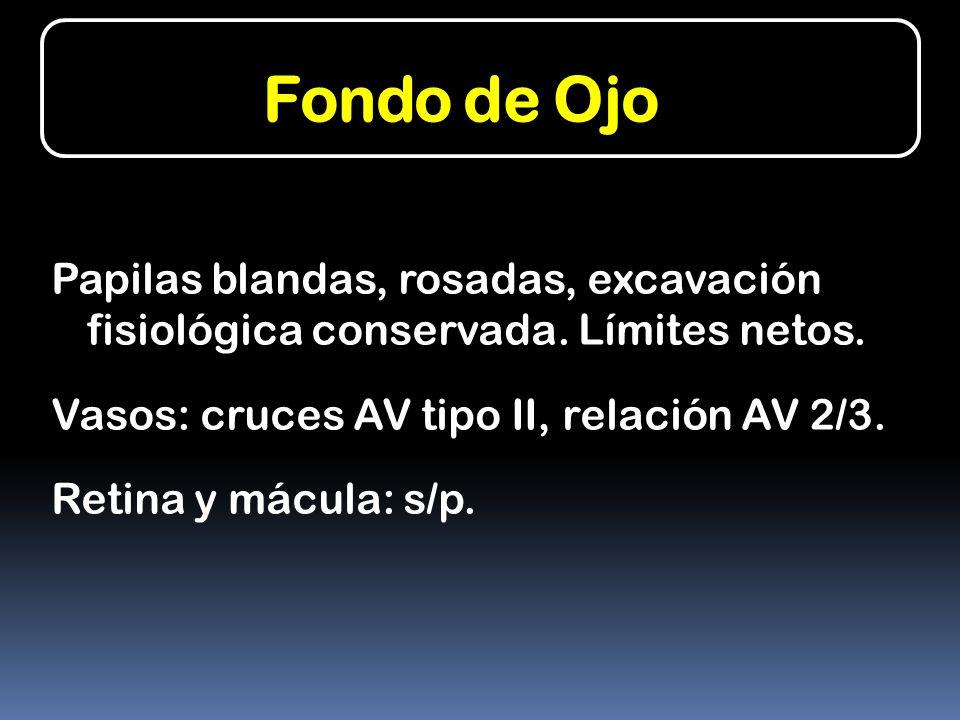 Fondo de Ojo Papilas blandas, rosadas, excavación fisiológica conservada. Límites netos. Vasos: cruces AV tipo II, relación AV 2/3. Retina y mácula: s