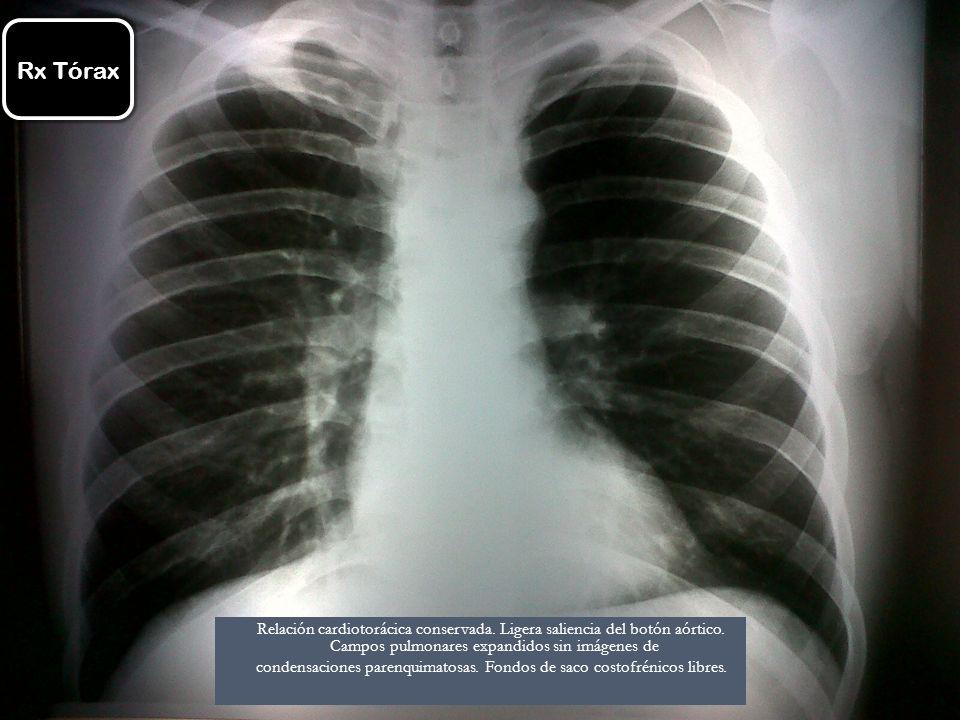 Rx Tórax Relación cardiotorácica conservada. Ligera saliencia del botón aórtico. Campos pulmonares expandidos sin imágenes de condensaciones parenquim