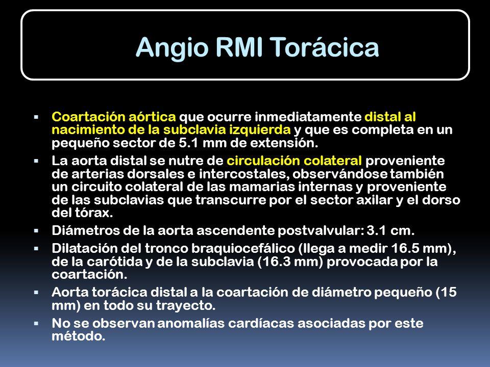 Angio RMI Torácica Coartación aórtica que ocurre inmediatamente distal al nacimiento de la subclavia izquierda y que es completa en un pequeño sector