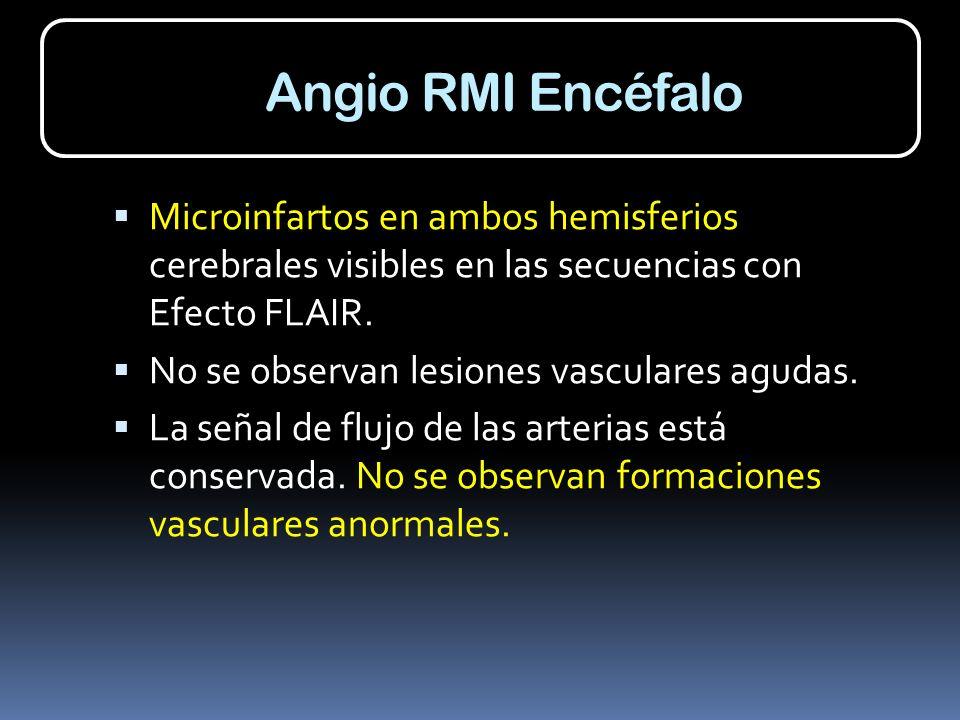 Angio RMI Encéfalo Microinfartos en ambos hemisferios cerebrales visibles en las secuencias con Efecto FLAIR. No se observan lesiones vasculares aguda