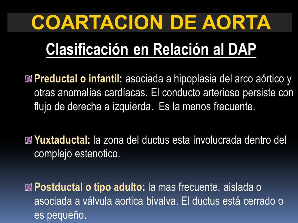 COARTACION DE AORTA Clasificación en Relación al DAP Preductal o infantil: asociada a hipoplasia del arco aórtico y otras anomalías cardíacas. El cond