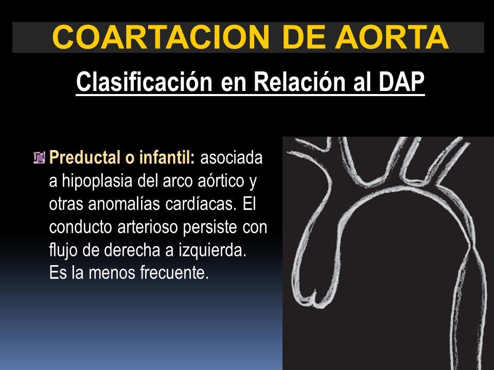 Preductal o infantil: asociada a hipoplasia del arco aórtico y otras anomalías cardíacas. El conducto arterioso persiste con flujo de derecha a izquie