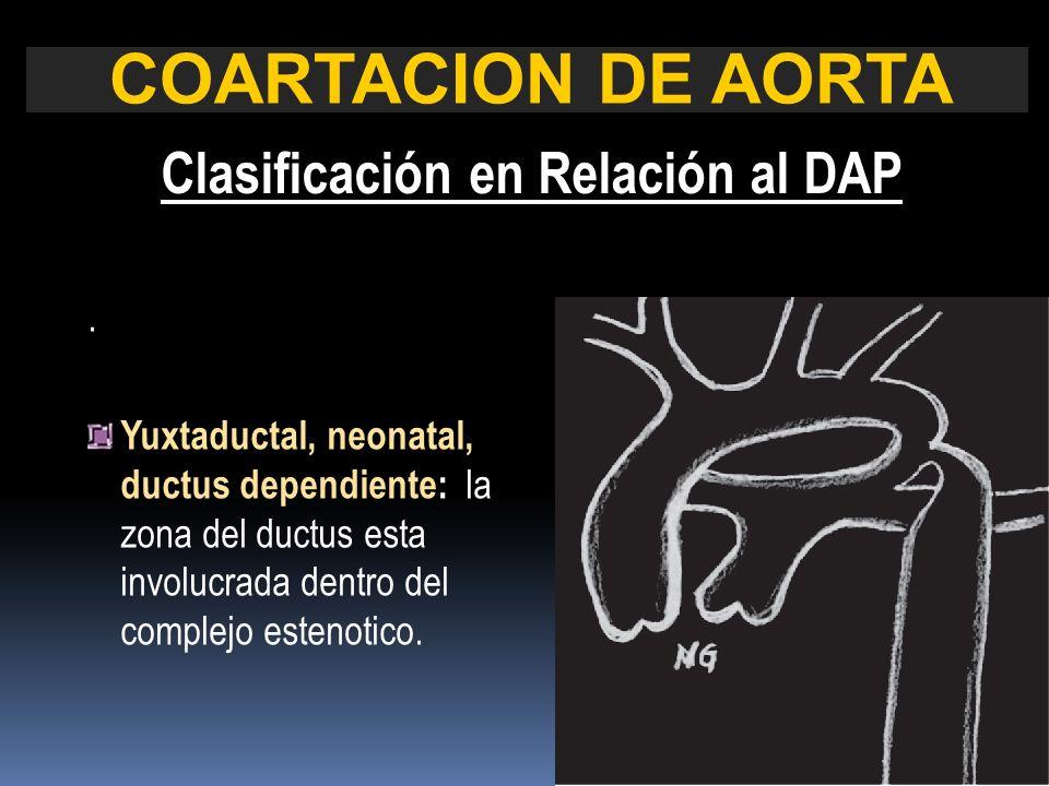COARTACION DE AORTA Clasificación en Relación al DAP. Yuxtaductal, neonatal, ductus dependiente: la zona del ductus esta involucrada dentro del comple