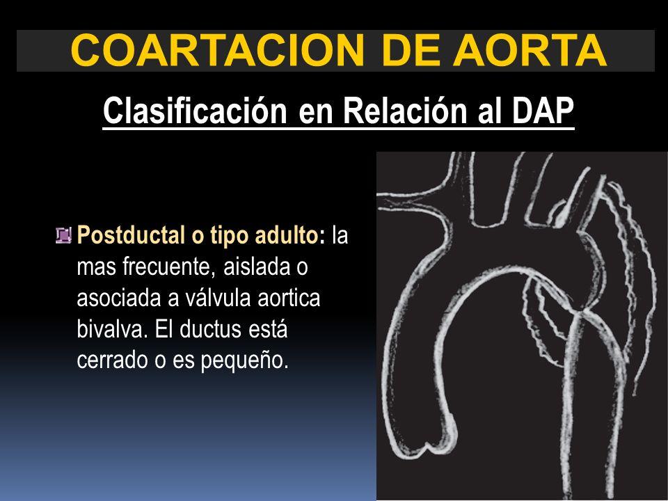 COARTACION DE AORTA Clasificación en Relación al DAP Postductal o tipo adulto: la mas frecuente, aislada o asociada a válvula aortica bivalva. El duct