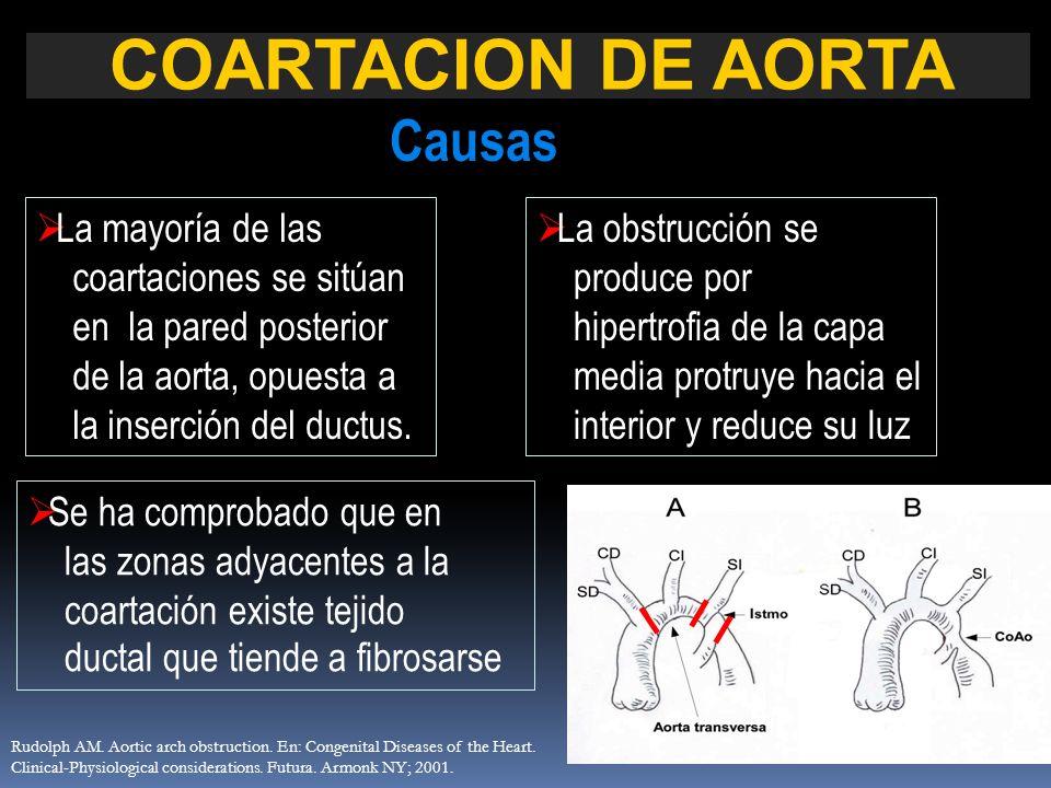 La mayoría de las coartaciones se sitúan en la pared posterior de la aorta, opuesta a la inserción del ductus. Se ha comprobado que en las zonas adyac