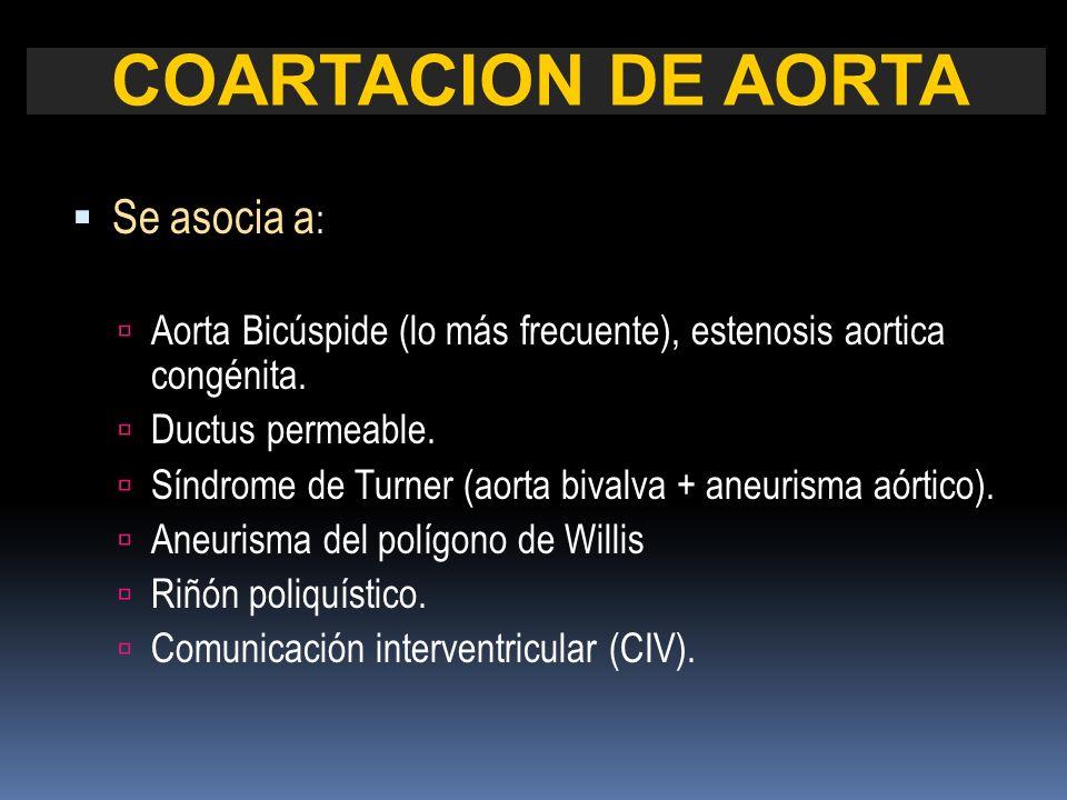 Se asocia a : Aorta Bicúspide (lo más frecuente), estenosis aortica congénita. Ductus permeable. Síndrome de Turner (aorta bivalva + aneurisma aórtico