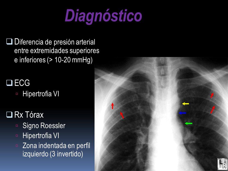 D iferencia de presión arterial entre extremidades superiores e inferiores (> 10-20 mmHg) ECG Hipertrofia VI Rx Tórax Signo Roessler Hipertrofia VI Zo