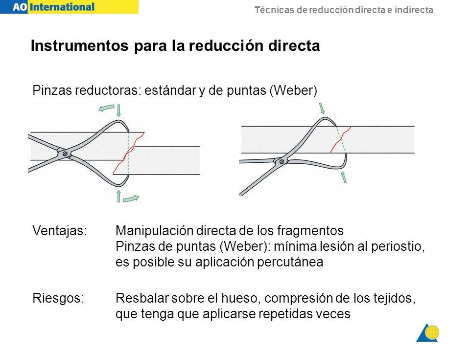 Técnicas de reducción directa e indirecta Pinzas reductoras: estándar y de puntas (Weber) Ventajas:Manipulación directa de los fragmentos Pinzas de pu