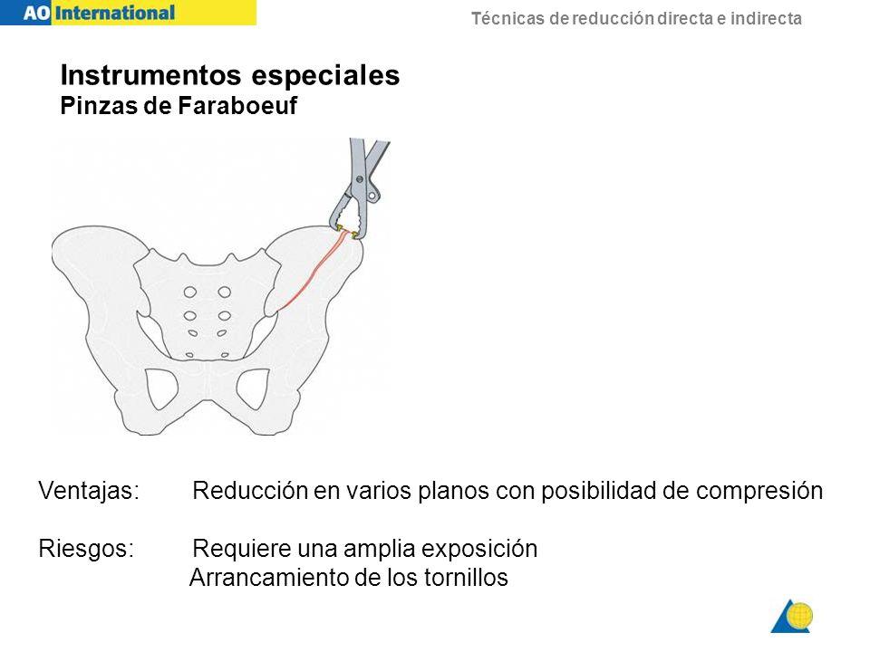 Instrumentos especiales Pinzas de Faraboeuf Ventajas:Reducción en varios planos con posibilidad de compresión Riesgos:Requiere una amplia exposición A