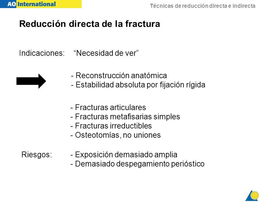 Técnicas de reducción directa e indirecta Reducción directa de la fractura Indicaciones: Necesidad de ver - Fracturas articulares - Fracturas metafisa