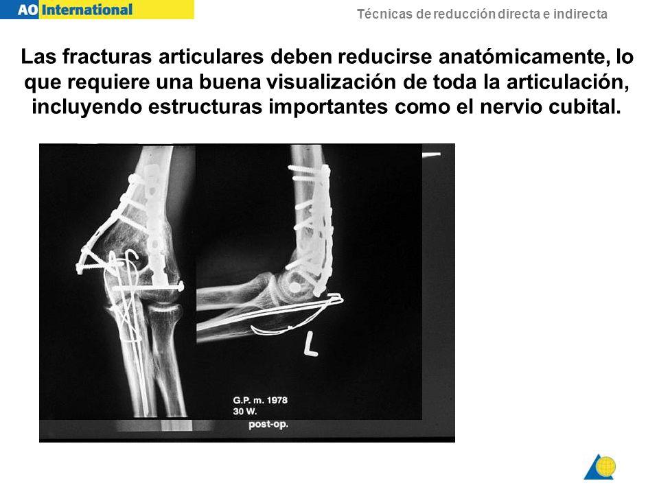 Técnicas de reducción directa e indirecta Las fracturas articulares deben reducirse anatómicamente, lo que requiere una buena visualización de toda la