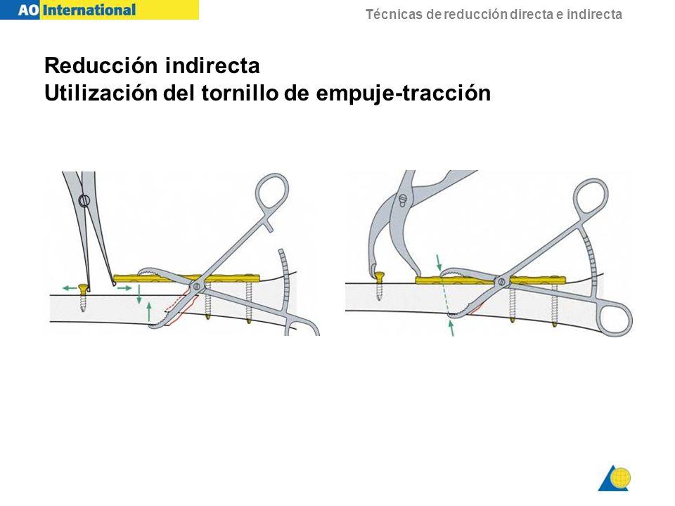 Técnicas de reducción directa e indirecta Reducción indirecta Utilización del tornillo de empuje-tracción