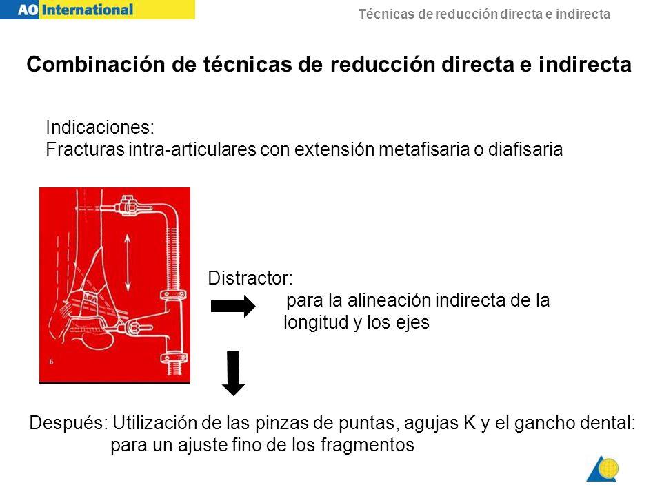 Técnicas de reducción directa e indirecta Indicaciones: Fracturas intra-articulares con extensión metafisaria o diafisaria Distractor: para la alineac
