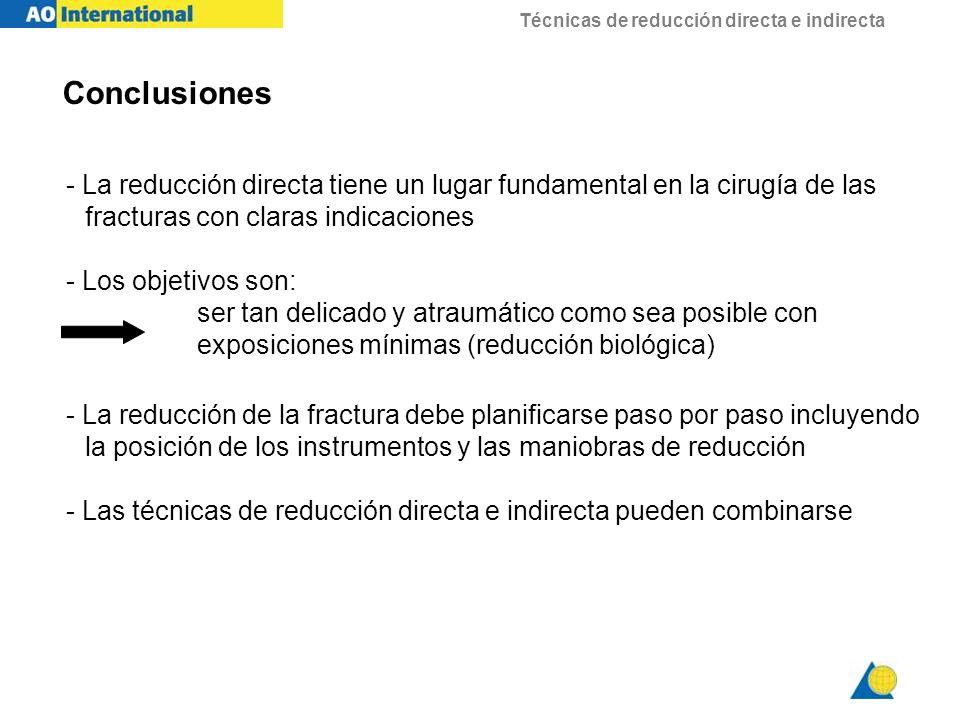 Técnicas de reducción directa e indirecta - La reducción directa tiene un lugar fundamental en la cirugía de las fracturas con claras indicaciones - L