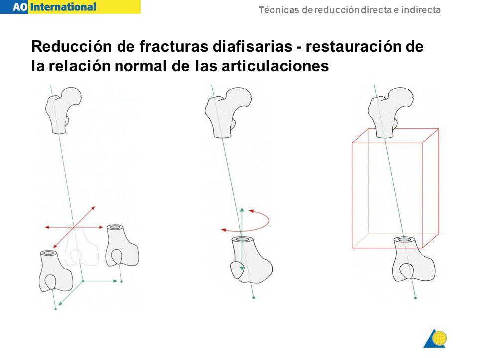 Técnicas de reducción directa e indirecta Fracturas articulares - Reducción anatómica, siempre que sea posible, es esencial para la curación del cartílago y normal función de la articulación -En este caso: -La reducción anatómica y la funcional son lo mismo