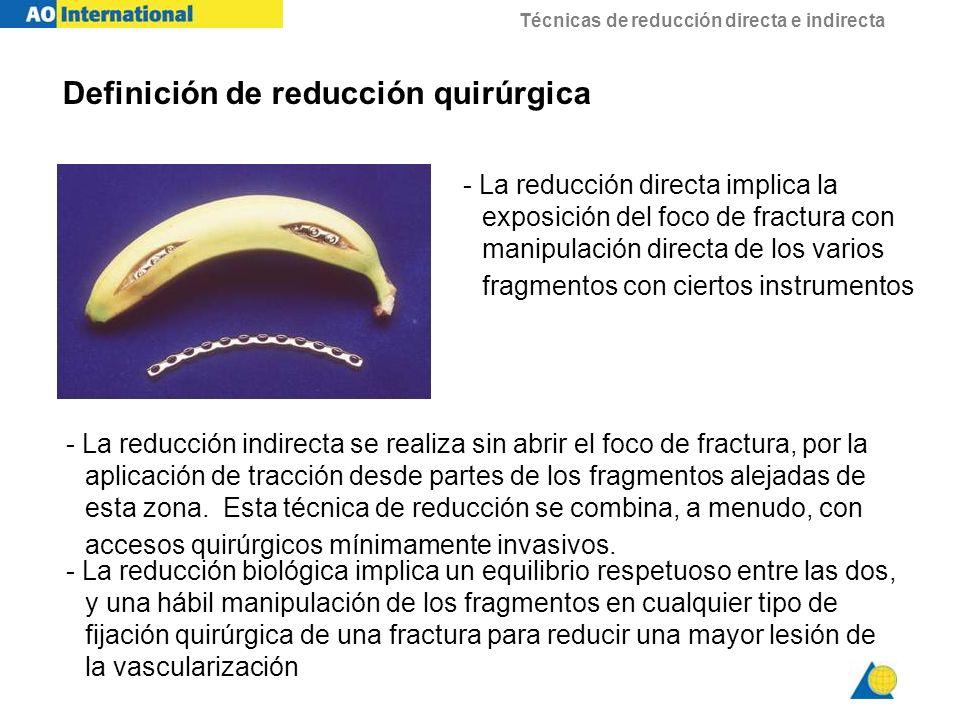 Técnicas de reducción directa e indirecta Reducción indirecta - uso del distractor femoral