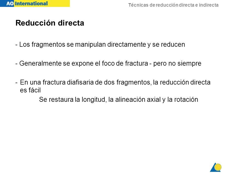 Técnicas de reducción directa e indirecta Reducción directa - Los fragmentos se manipulan directamente y se reducen - Generalmente se expone el foco d