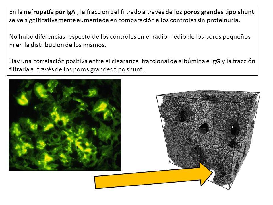 En la nefropatía por IgA, la fracción del filtrado a través de los poros grandes tipo shunt se ve significativamente aumentada en comparación a los co